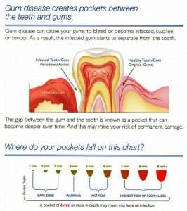 gum disease pockets